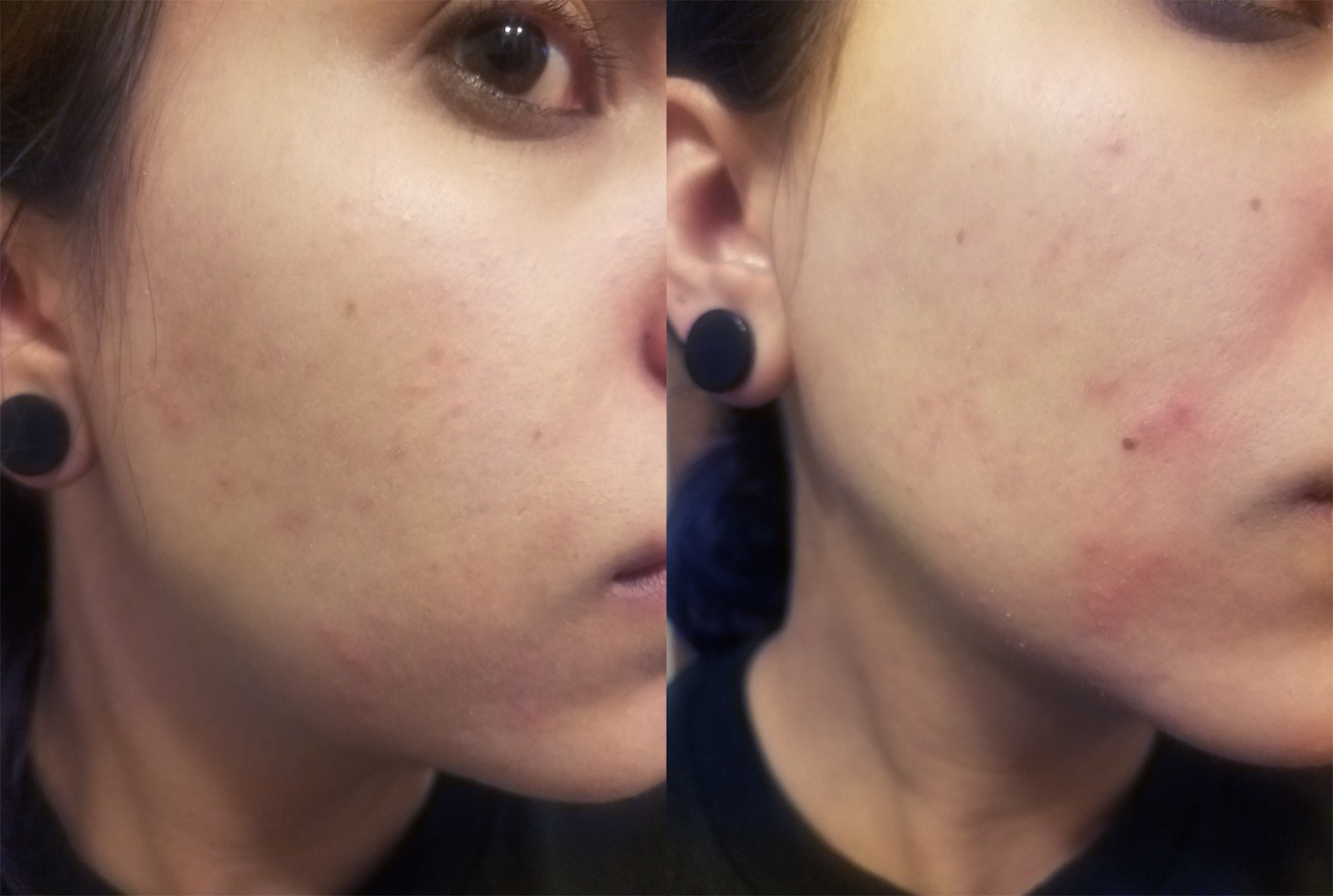 Fungal Acne Skin Part 1 Tiny Moon