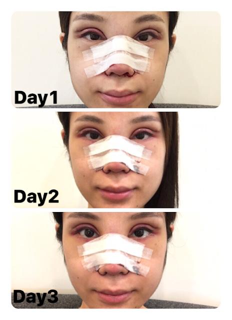 rhinoplasty nose eyelids epi epicanthoplasty zhongxiao dunhua zhongxiaodonglu