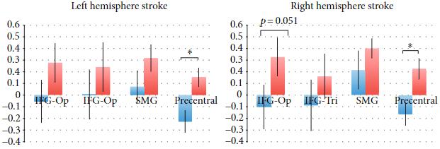 図:側方性と左右脳損傷 動作観察