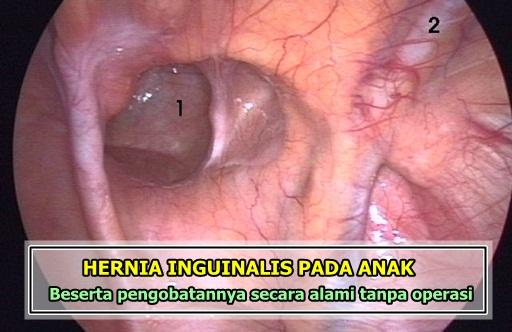 Pengobatan Hernia Inguinalis Pada Anak Tanpa Operasi
