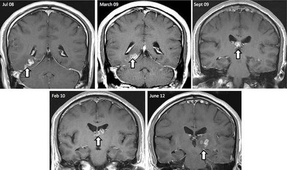 Stella Dimoko Korkus com: Tapeworm Crawling Through Man's Brain Goes