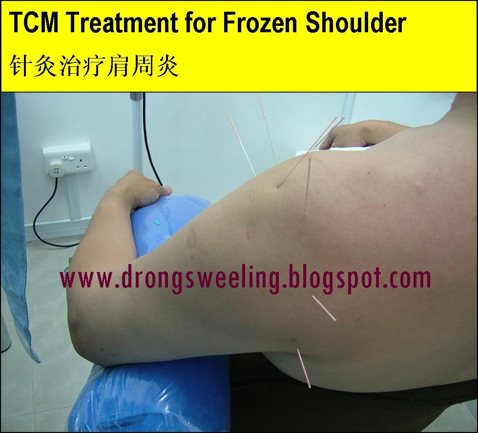 TCM News: TCM Clinic, TCM Physician -- Frozen Shoulder healed