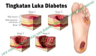 cara cepat menyembuhkan luka diabetes basah dan kering tanpa operasi