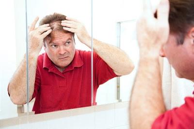 Dấu hiệu của bệnh rụng tóc ở nam giới