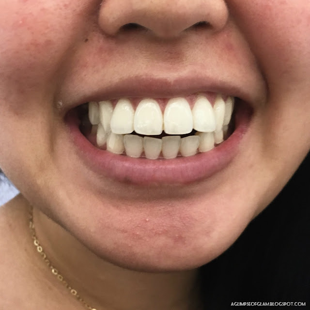 After Photo for Smile Brilliant Teeth Whitening Review - Andrea Tiffany A Glimpse of Glam