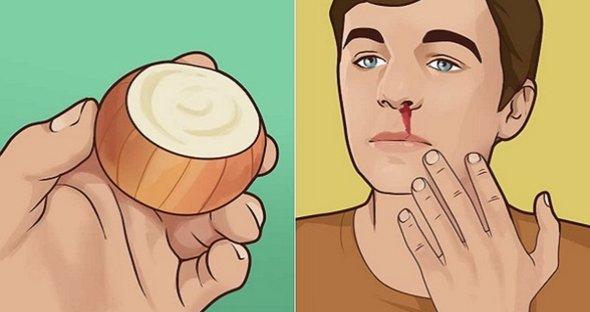 Remedii naturale pentru sangerarile nazale. Primul ajutor in caz de urgenta