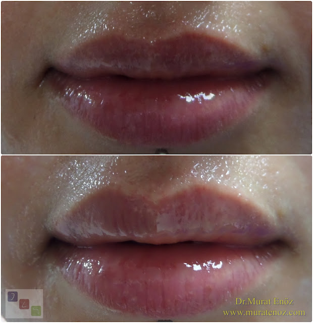 Recommendations before lip augmentation with filler - What to do after lip filler injection? - Medications that are inconvenient for lip filler injection - Lip augmentation and enhancement with filler - Recommendations after lip filler injection - Recommendations for swelling after lip augmentation with filler - Lip augmentation with filler in Istanbul