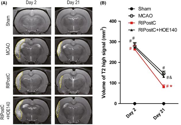 図:遠隔虚血ポストコンディショニングの脳卒中治療効果
