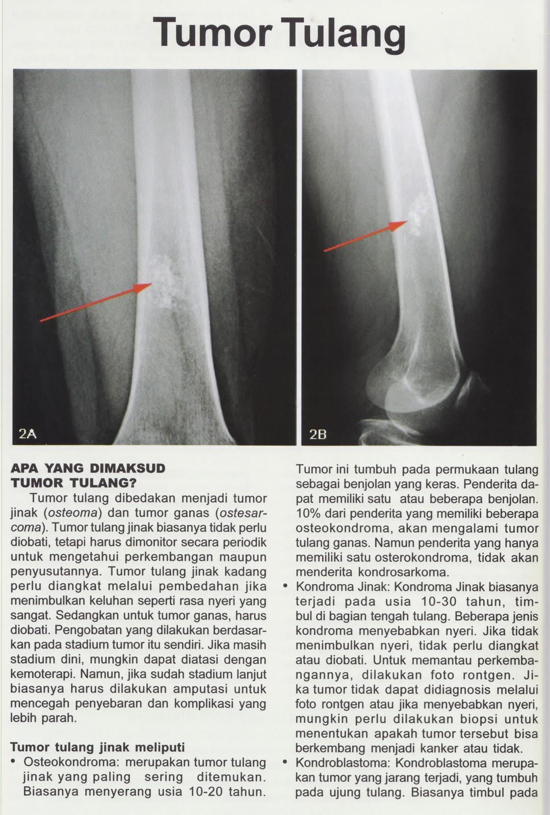 Rumah Sehat Bos Tulang Otot Dan Sendi Osteoporosis