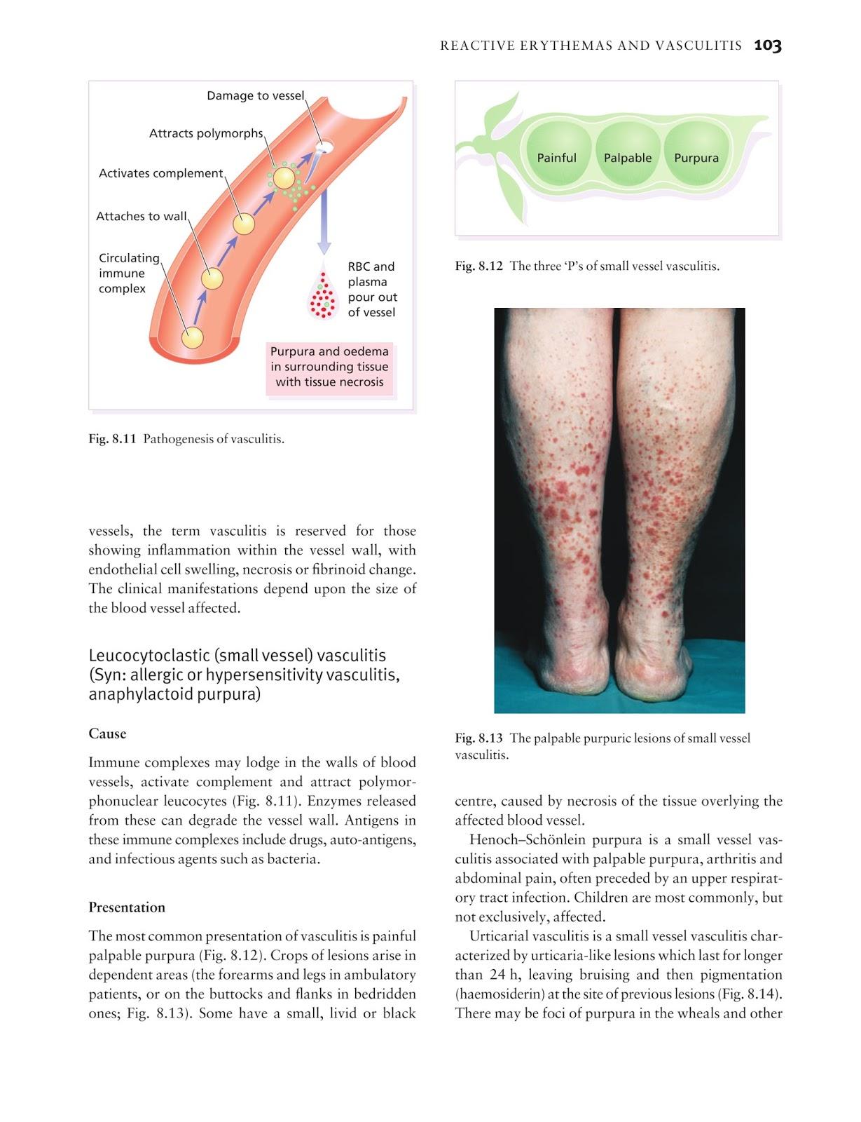 Medicine by Sfakianakis G. Alexandros: Skin disease in