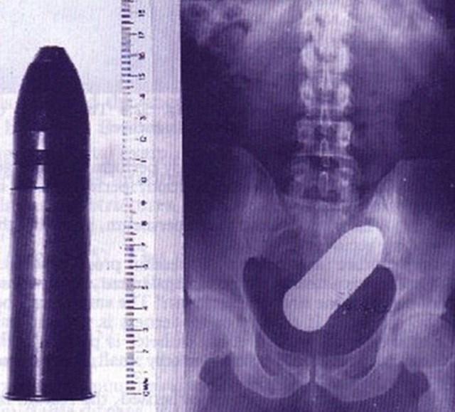 De anel a vibrador: veja os 6 objetos mais estranhos já encontrados em raios X
