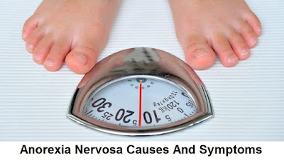 Anorexia nervosa is a serious eating disorder and a mental disorder Eating Disorders Anorexia Nervosa
