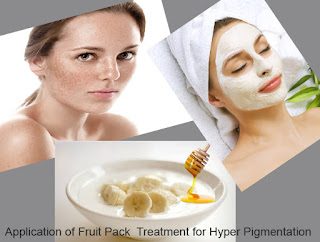 Banana face Pack to get rid of Hyper Pigmentation