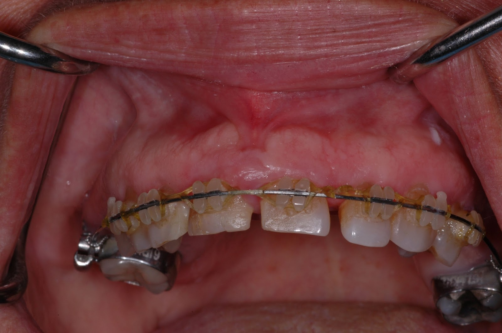 The Buzz from Your Favorite Dental Hygienists: Gingival ...  The Buzz from Y...