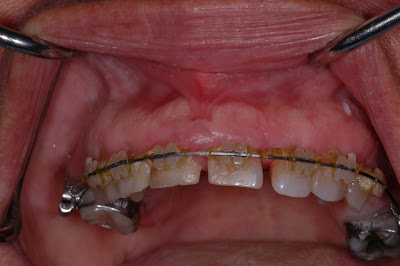 Gingivitis With Braces