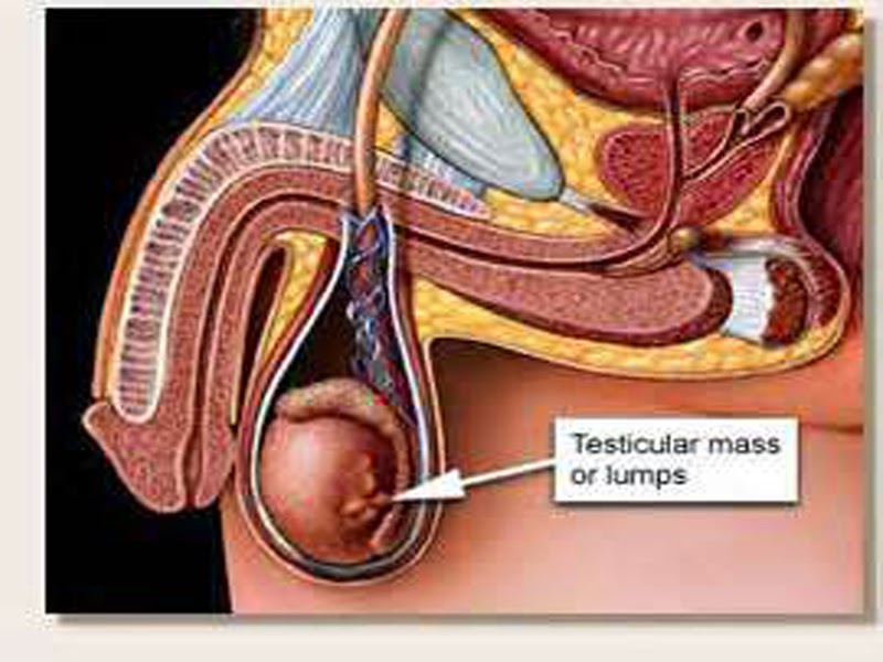 Information About Testicular Cancer What Are The Symptoms Of Diseases