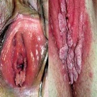 Penyakit Kutil Kelamin Wanita