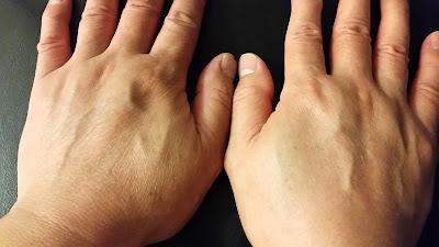 A comparison of his left and right hand after. The left hand used nothing while the right hand used the Goodal Phytowash Yerba Mate Bubbling Peeling product.