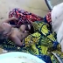 Baby born with his heart outside his body in Yobe state( SEE PHOTOS/VIDEO)