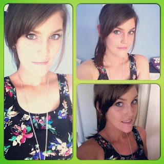 After orthognathic surgery and titanium plate removal surgery images stefanie grant