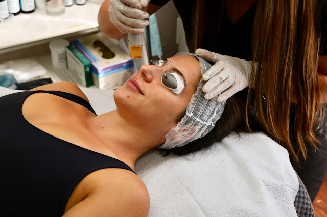 laser face treatments skin peel