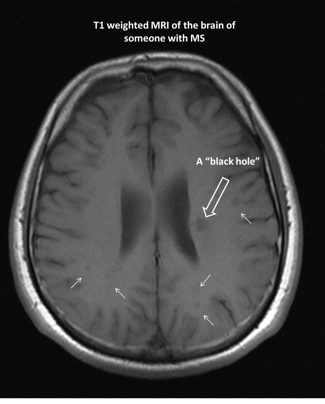 black holes on brain mri -#main