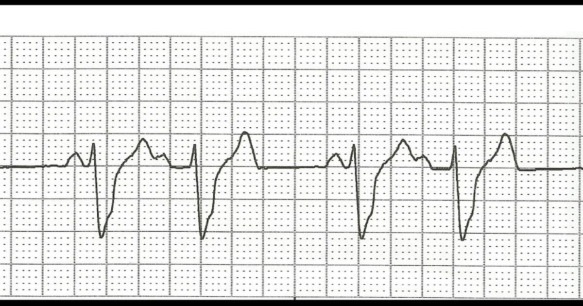 Float Nurse: ECG Rhythm Strip Quiz 99: Heart blocks