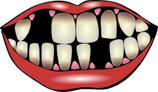 اضرار المشروبات الغازية على اسنان الانسان