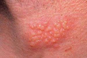 herpes di leher