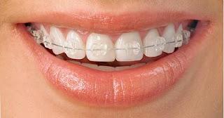 Niềng răng ở đâu tốt, niềng răng nha khoa là gì?