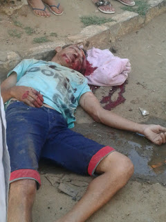 Em Soledade homem fica ferido gravemente após cair da moto