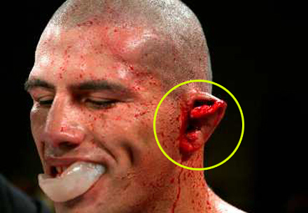 how to get rid of cauliflower ear at home