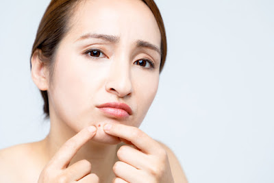 A young, distressed Asian woman squeezing a pimple on her chin.