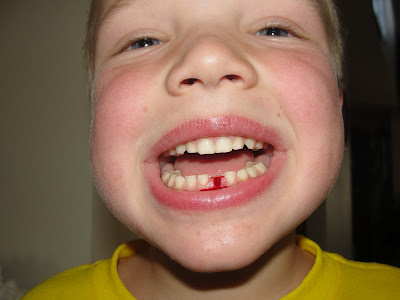 Losing a tooth, teeth pictures