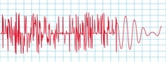 Dinamica si inginerie seismica