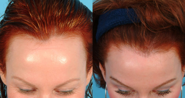 هذة الوصفة يشهد الله انه فعااله لعلاج مشكلة الشعر الخفيف و الصلع عند مقدمة الرأس