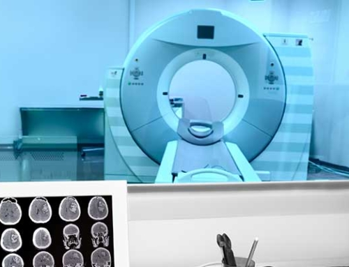 Do you consider yourself to be a candidate for MRI scan?
