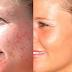Acne Scar Treatment For Stubborn Scars & Spots