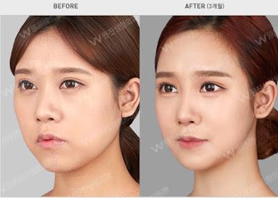 foto sebelum dan sesudah operasi plastik di korea 02