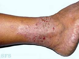 Obat eksim di kaki dan telapak tangan