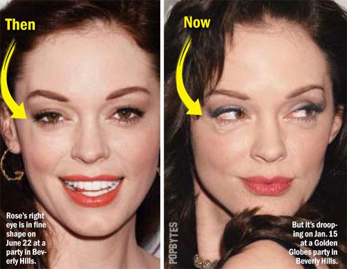 Keira Knightley Lip Injection