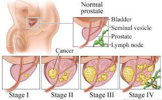 manfaat daun kenikir untuk kanker prostat