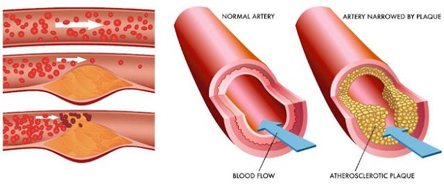 Pengobatan Untuk Mengatasi Kolesterol Tinggi Secara Efektif Dan Cepat
