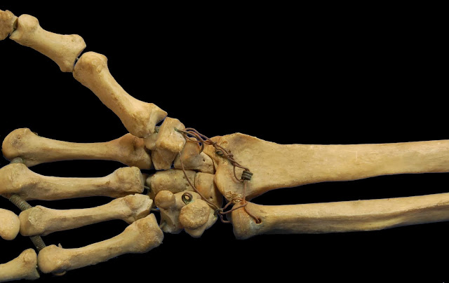 सेप्टिक आथ्राइटिस [ Septic Orthritis ] रोग के लक्षण , निदान एव चिकित्सा कैसे करे ? Septic orthritis: How to diagnose, diagnose and treat the disease?