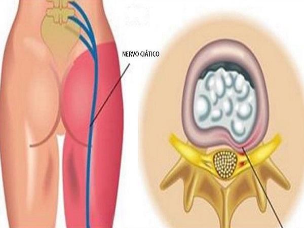 você pode curar dor no nervo ciático