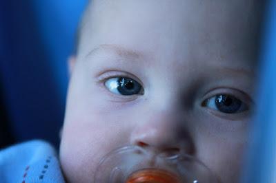 Kapan Saat yang Tepat untuk Mengunjungi Dokter Alergi Anak?