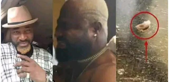 Doctor Performs Emergency Surgery, Removes Live Maggot From Harrysong's Back