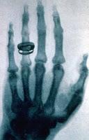 De Wilhelm Röntgen; current version created by Old Moonraker. - Flipped version of File:X-ray by Wilhelm Röntgen of Albert von Kölliker's hand - 18960123-03.jpg (now deleted as a duplicate)., Dominio público, http://ift.tt/2nX0KKX