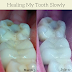 The Healing Of A Tooth I My Personal Experience I Life Essentially