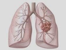 cancer pulmonaire